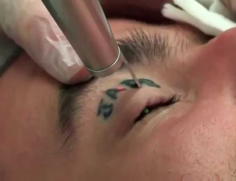 'All about Laser treatment for tattoo removal