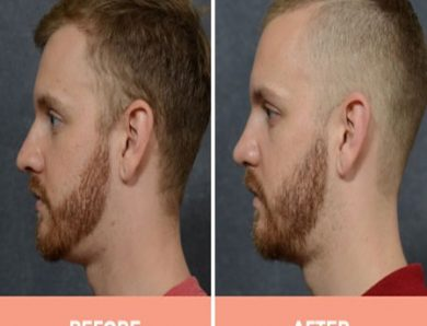 Some Face Procedures Can Drastically Improve The Look Of Man's Face