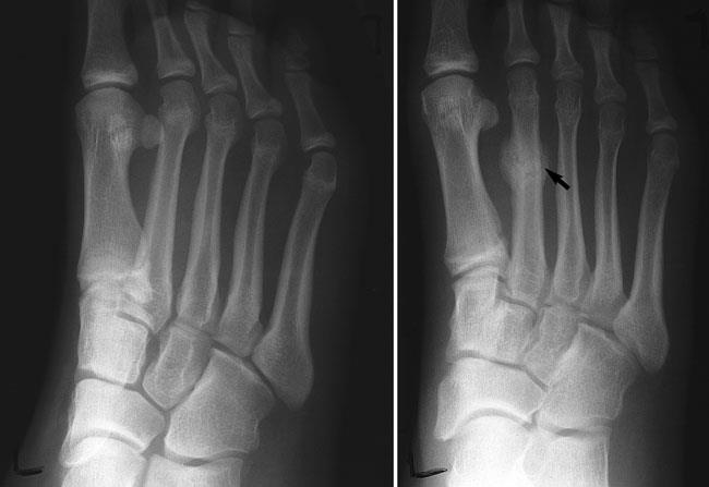 Stress Fracture: What are they and How to Recover from it?