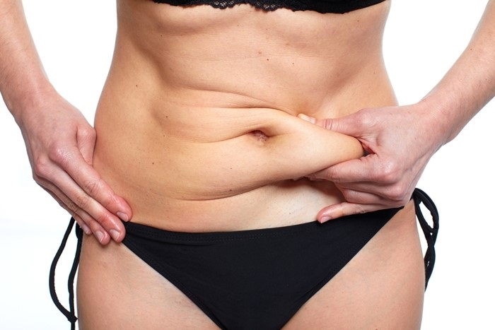 What A Tummy Tuck Procedure Involves