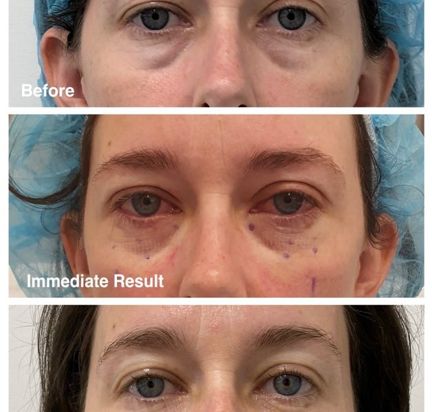 Visiting A Beauty Clinic Can Lead To Fantastic Improvements