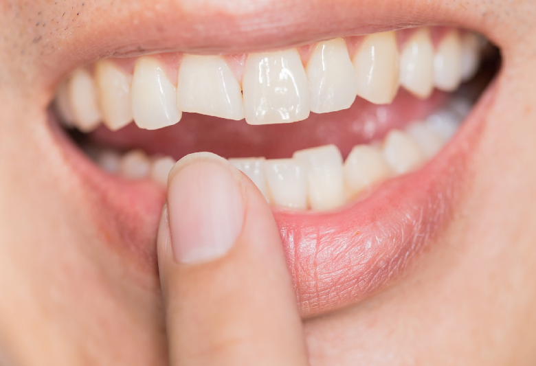 Cosmetic Bonding an Affordable & Painless Aesthetic Dental Treatment